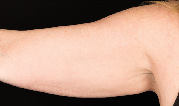 Real results, so you can reveal those upper arms