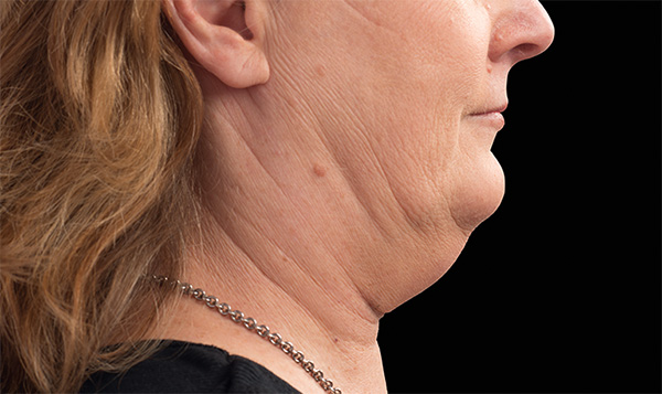 Lose that double chin to gain a more youthful you
