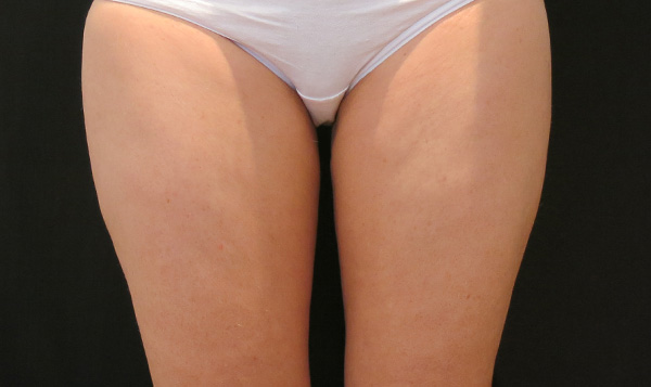 Slimmer inner thighs with a wider gap between them