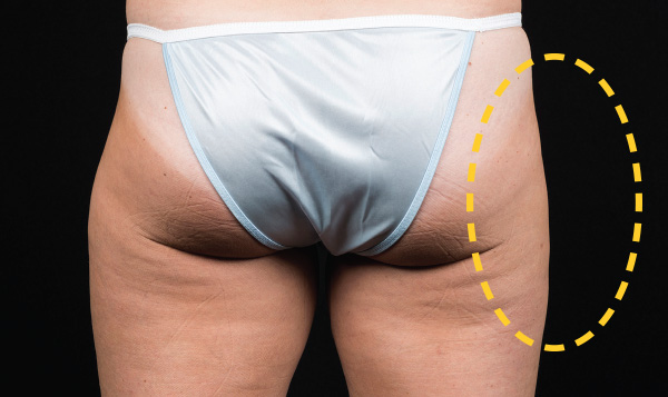 Slimmer outer thighs without the bulging fat