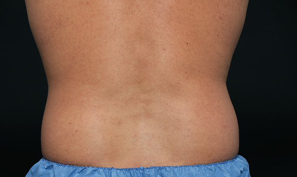 Lose that double chin to gain a more Love handles go missing (but you won't miss them)